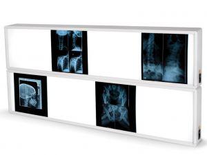 GI-27370 - NEGATIVOSCOPIO 2x4 PANNELLI 76 x 153 cm